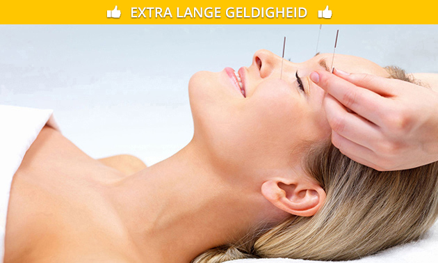 Acupunctuurbehandeling (60-75 min)