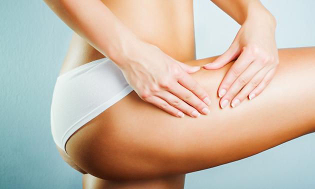 Figuurcorrigerende anti-cellulitebehandeling