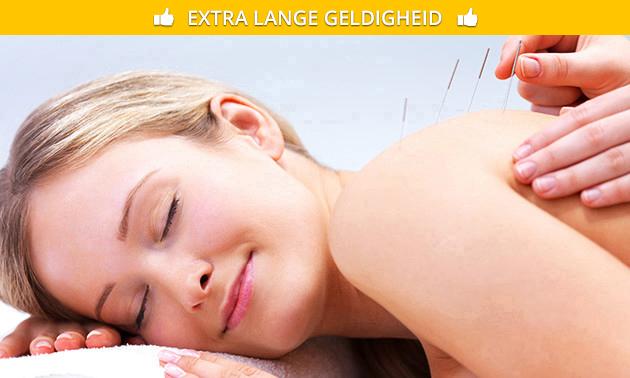 Acupunctuurbehandeling (60 min) naar keuze
