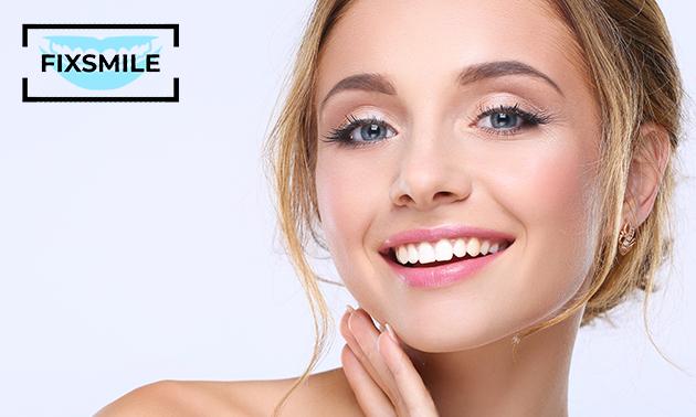 Tandenbleekbehandeling (2, 4, 6 of 8 sessies)
