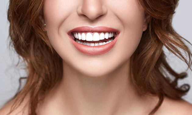 Tandenbleekbehandeling (60 of 120 min)
