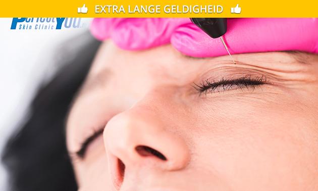Huidverjonging door PlexR