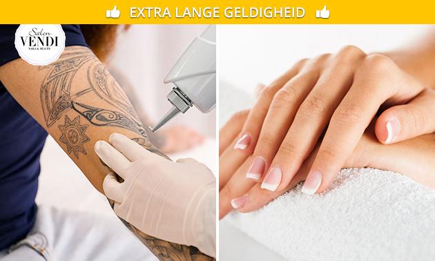 Manicurebehandeling of tatoeage verwijderen