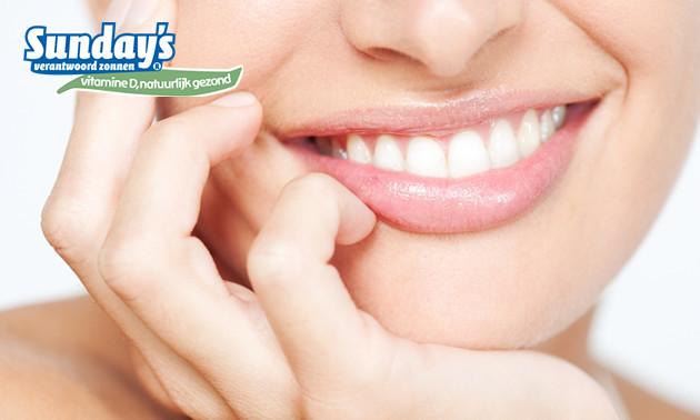 Dubbele tandenbleekbehandeling bij Sunday´s