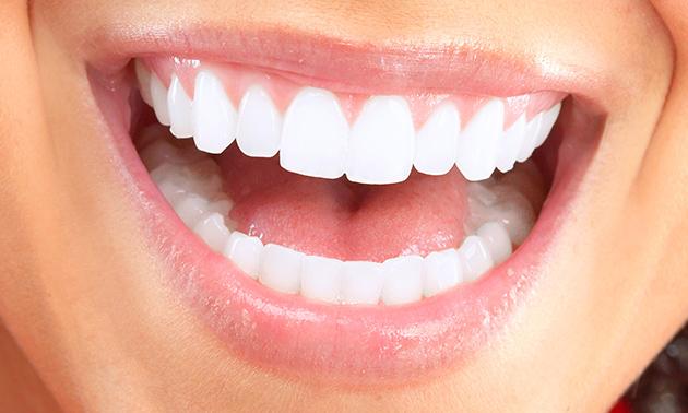 Tandenbleekbehandelingen