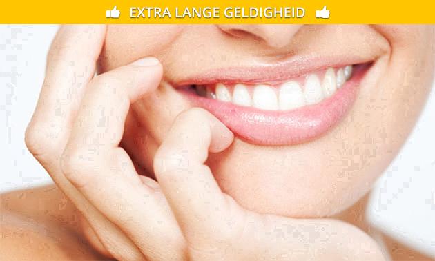 Tandenbleekbehandeling bij V.I.P. Company