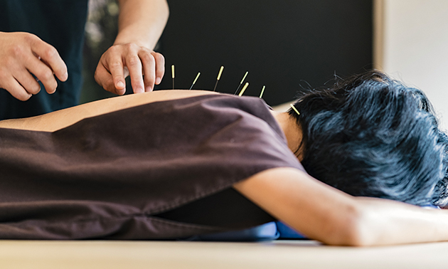 Acupunctuursessie(s) (60 min)